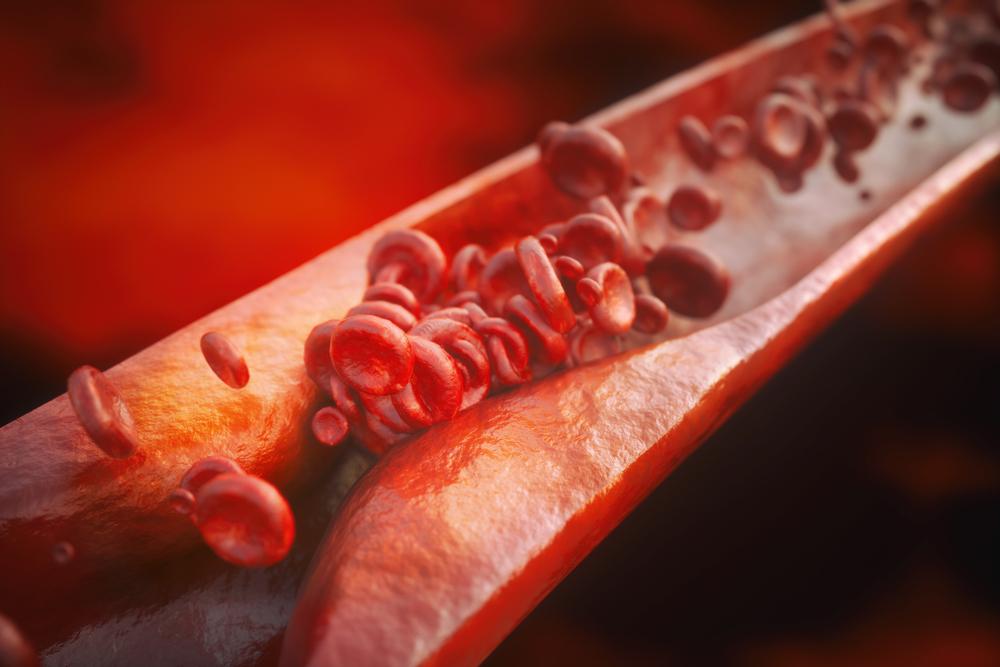 Aterskleroza